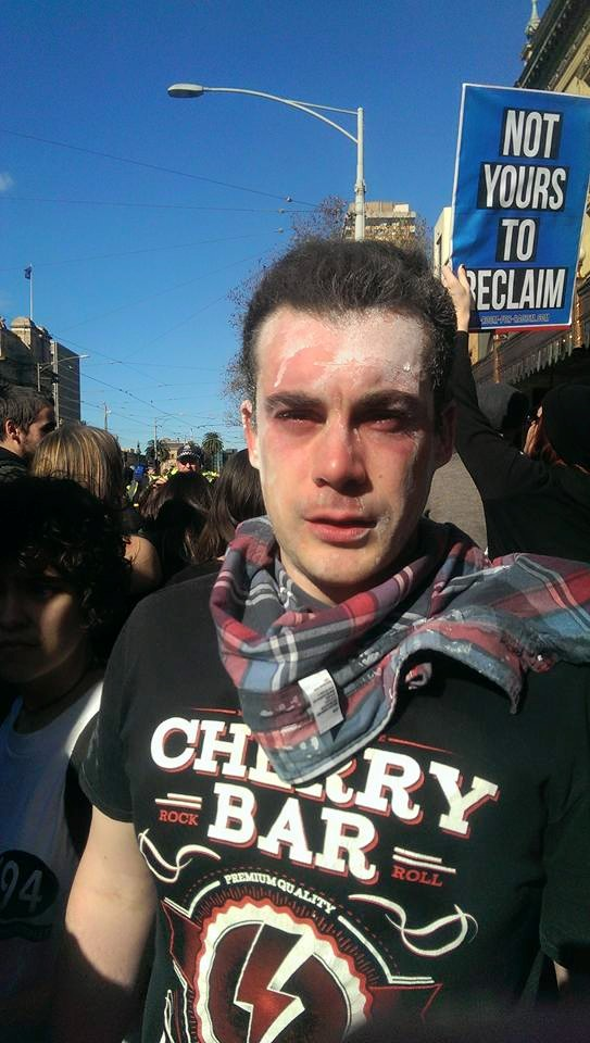 "Simon who was at his first protest ever and was covered in pepper spray reflects: ""It sucked. Kinda worth it for the cause we support."""
